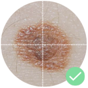 Check your moles and discover early signs of melanoma